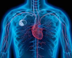 Investigadores criam pacemakers alimentados a batimento cardíaco